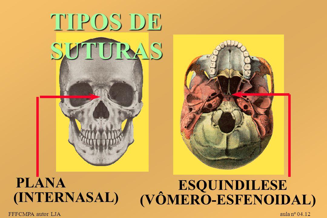 FFFCMPA autor LJA aula nº 04.12 TIPOS DE SUTURAS PLANA ESQUINDILESE (INTERNASAL) (VÔMERO-ESFENOIDAL)