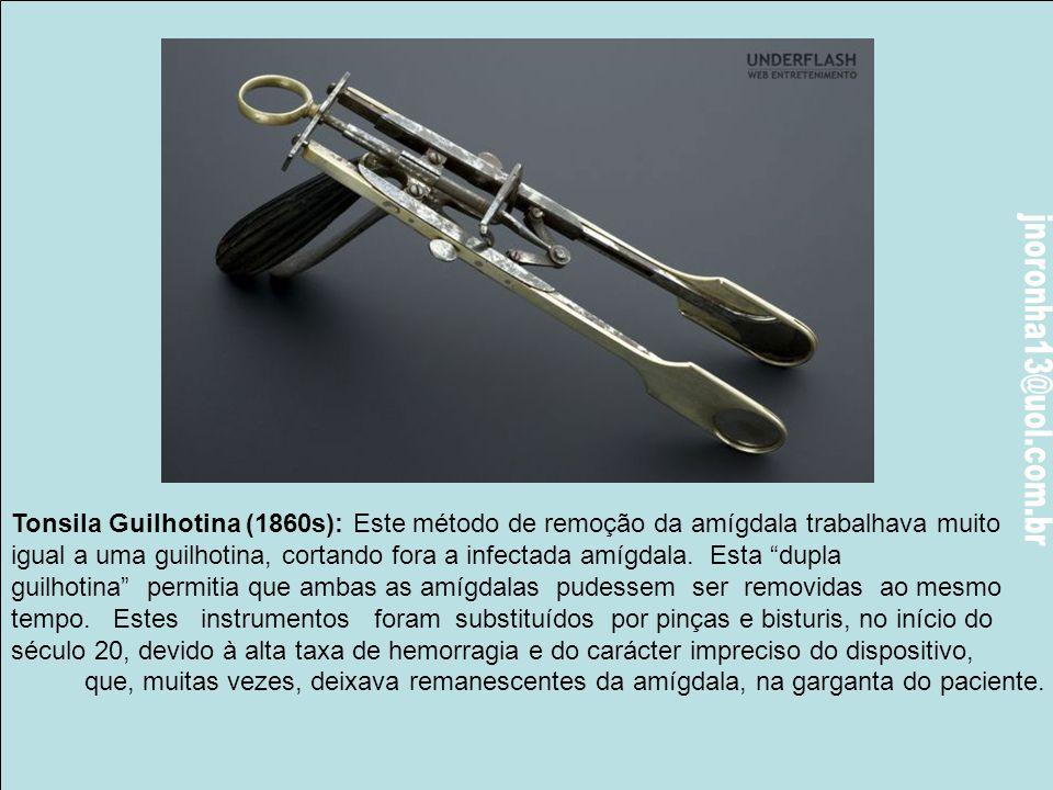 Espéculo Vaginal (1600): O espéculo era utilizado para permitir aos médicos uma melhor visão e acesso à área vaginal (ou outras cavidades corporais),