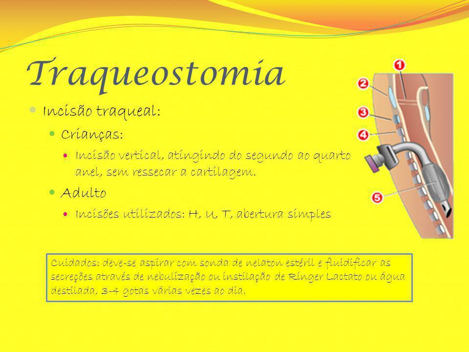 Traqueostomia Incisão traqueal: Crianças: Incisão vertical, atingindo do segundo ao quarto anel, sem ressecar a cartilagem. Adulto Incisões utilizados