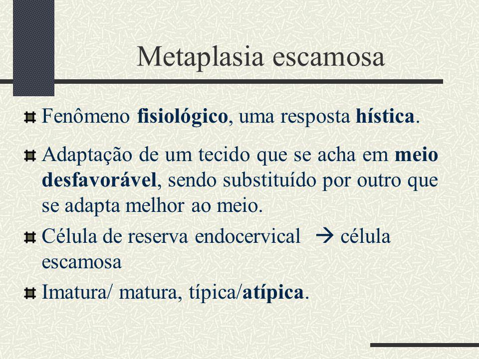 Metaplasia escamosa Fenômeno fisiológico, uma resposta hística. Adaptação de um tecido que se acha em meio desfavorável, sendo substituído por outro q