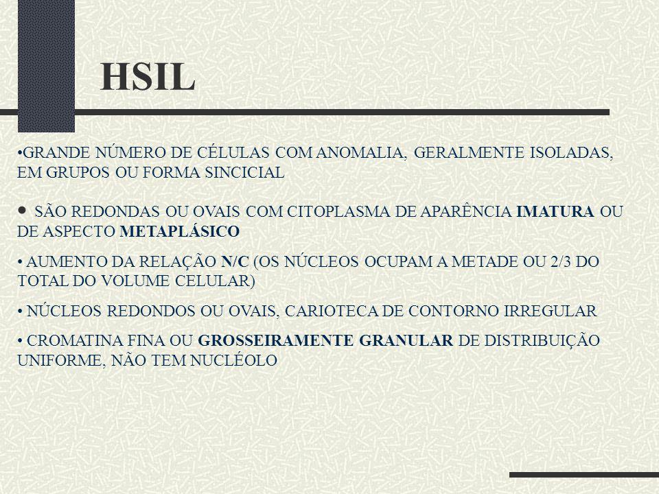 HSIL GRANDE NÚMERO DE CÉLULAS COM ANOMALIA, GERALMENTE ISOLADAS, EM GRUPOS OU FORMA SINCICIAL SÃO REDONDAS OU OVAIS COM CITOPLASMA DE APARÊNCIA IMATUR