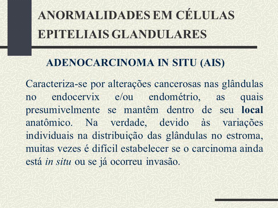 ANORMALIDADES EM CÉLULAS EPITELIAIS GLANDULARES ADENOCARCINOMA IN SITU (AIS) Caracteriza-se por alterações cancerosas nas glândulas no endocervix e/ou