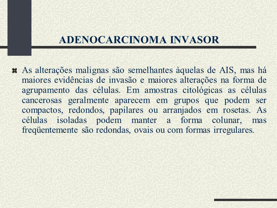 ADENOCARCINOMA INVASOR As alterações malignas são semelhantes àquelas de AIS, mas há maiores evidências de invasão e maiores alterações na forma de ag
