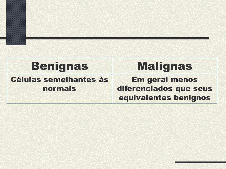 BenignasMalignas Células semelhantes às normais Em geral menos diferenciados que seus equivalentes benignos