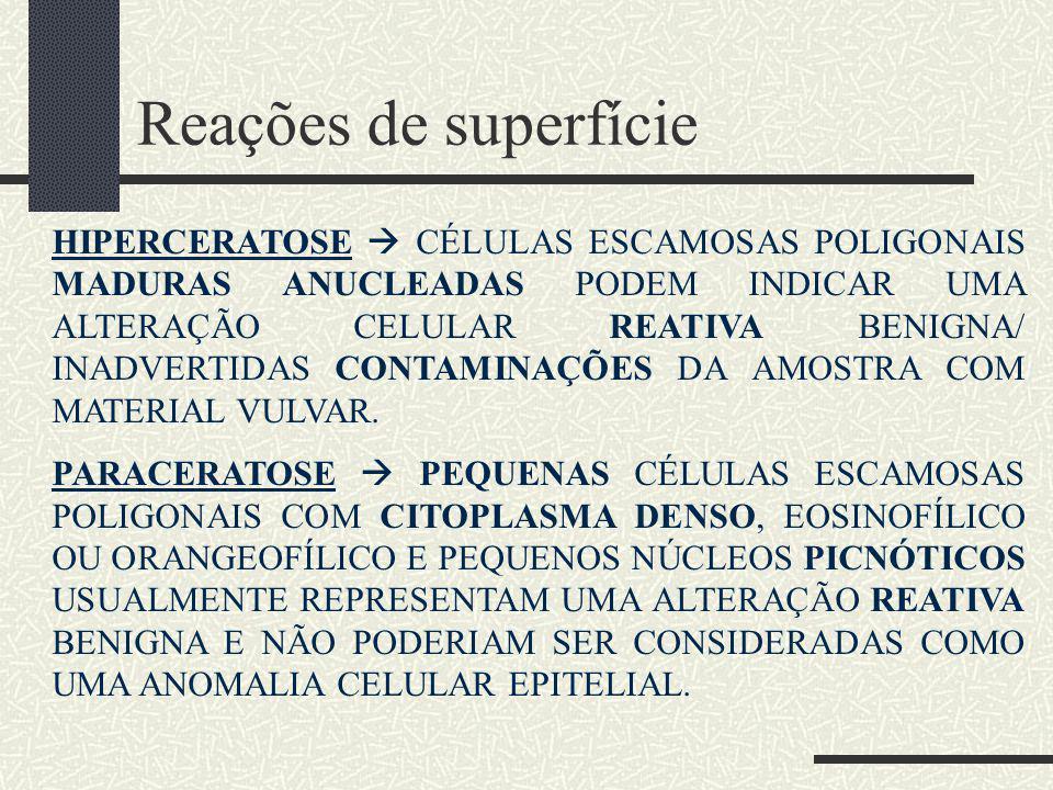 Reações de superfície HIPERCERATOSE  CÉLULAS ESCAMOSAS POLIGONAIS MADURAS ANUCLEADAS PODEM INDICAR UMA ALTERAÇÃO CELULAR REATIVA BENIGNA/ INADVERTIDA