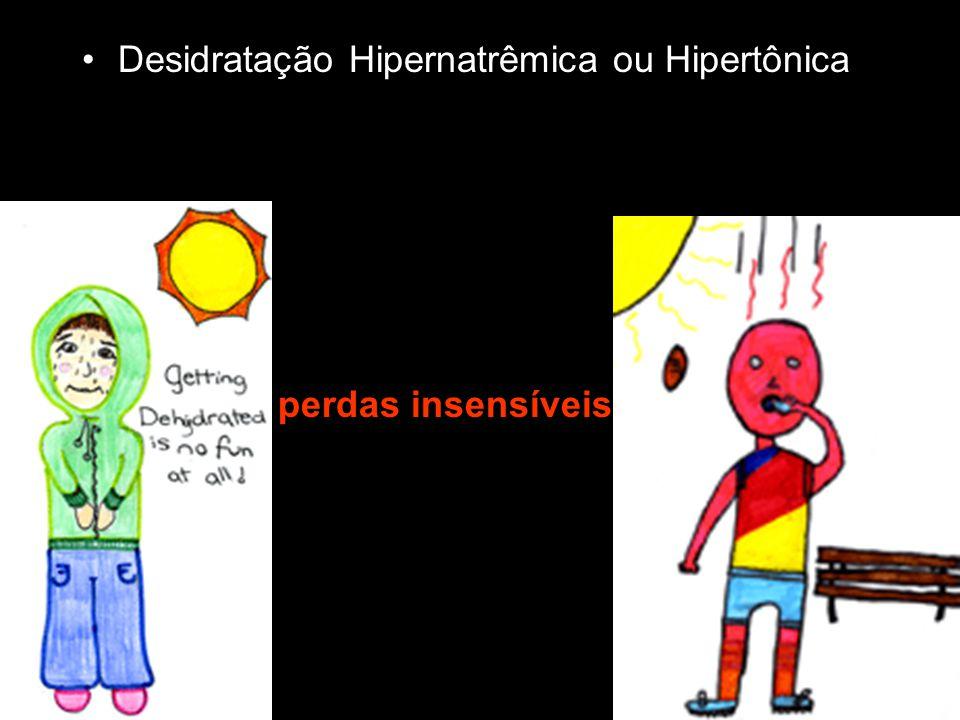 Desidratação Hipernatrêmica ou Hipertônica perdas insensíveis