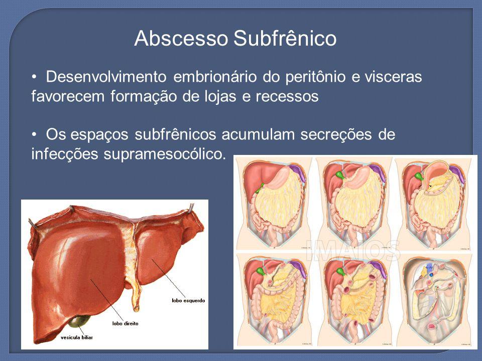 Abscesso Subfrênico Desenvolvimento embrionário do peritônio e visceras favorecem formação de lojas e recessos Os espaços subfrênicos acumulam secreçõ