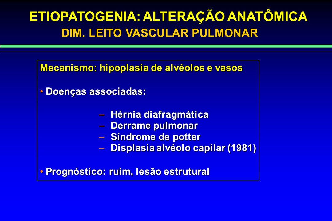 Mecanismo: hipoplasia de alvéolos e vasos Doenças associadas:Doenças associadas: –Hérnia diafragmática –Derrame pulmonar –Síndrome de potter –Displasi