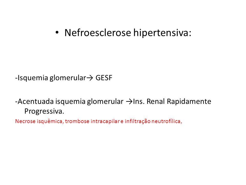 Nefroesclerose hipertensiva: -Isquemia glomerular→ GESF -Acentuada isquemia glomerular →Ins. Renal Rapidamente Progressiva. Necrose isquêmica, trombos