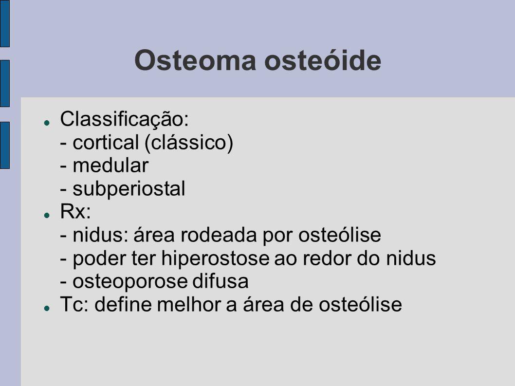 Osteoma osteóide Classificação: - cortical (clássico) - medular - subperiostal Rx: - nidus: área rodeada por osteólise - poder ter hiperostose ao redo