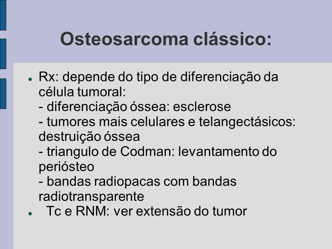 Osteosarcoma clássico: Rx: depende do tipo de diferenciação da célula tumoral: - diferenciação óssea: esclerose - tumores mais celulares e telangectás