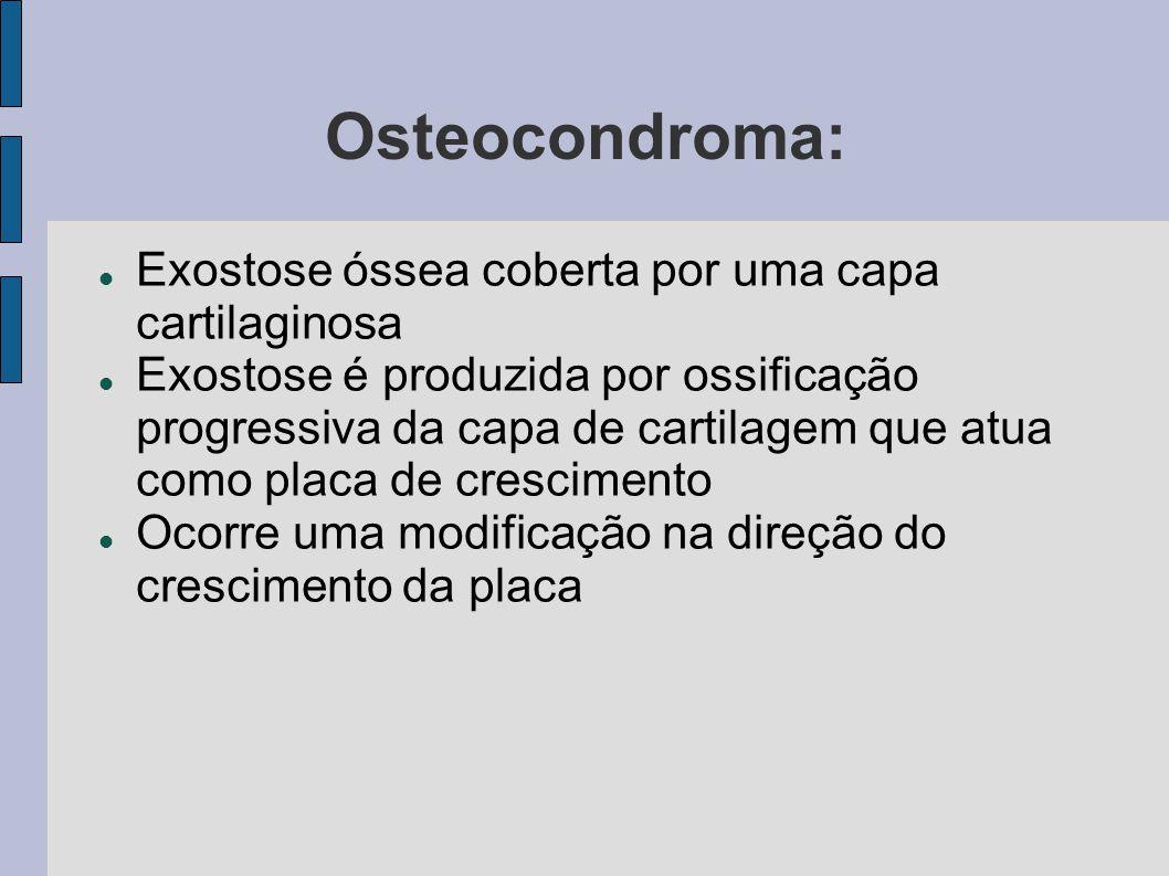 Osteocondroma: Exostose óssea coberta por uma capa cartilaginosa Exostose é produzida por ossificação progressiva da capa de cartilagem que atua como