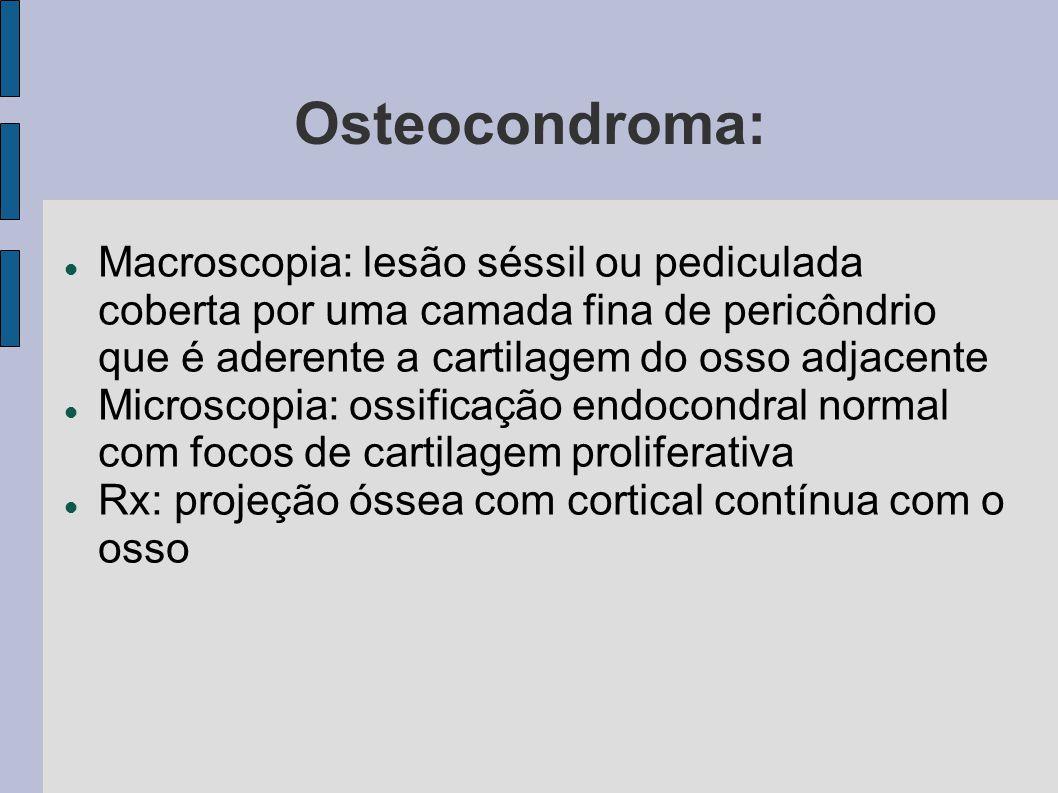 Osteocondroma: Macroscopia: lesão séssil ou pediculada coberta por uma camada fina de pericôndrio que é aderente a cartilagem do osso adjacente Micros