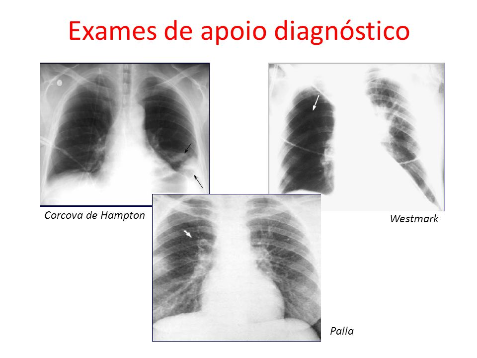 Exames de apoio diagnóstico Corcova de Hampton Westmark Palla
