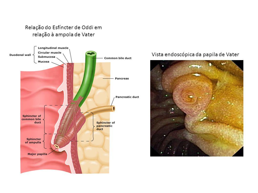 Relação do Esfíncter de Oddi em relação à ampola de Vater Vista endoscópica da papila de Vater