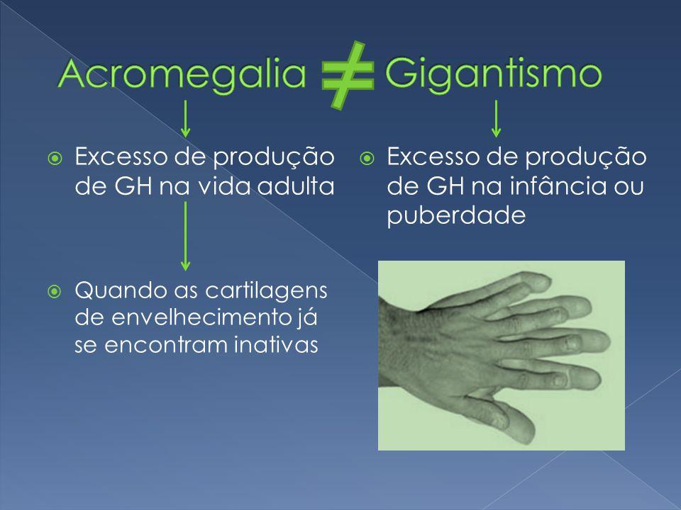  Excesso de produção de GH na vida adulta  Quando as cartilagens de envelhecimento já se encontram inativas  Excesso de produção de GH na infância ou puberdade