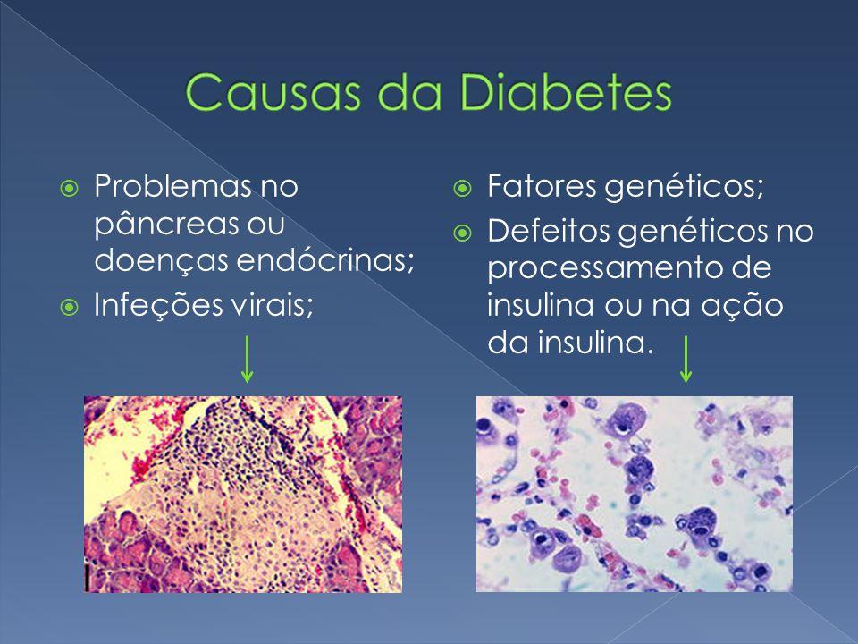  Problemas no pâncreas ou doenças endócrinas;  Infeções virais;  Fatores genéticos;  Defeitos genéticos no processamento de insulina ou na ação da insulina.