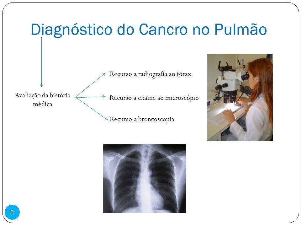 Diagnóstico do Cancro no Pulmão Avaliação da história médica Recurso a radiografia ao tórax Recurso a exame ao microscópio Recurso a broncoscopia 5