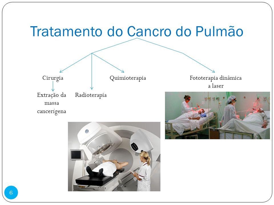 Tratamento do Cancro do Pulmão CirurgiaQuimioterapia Radioterapia Fototerapia dinâmica a laser Extração da massa cancerígena 6