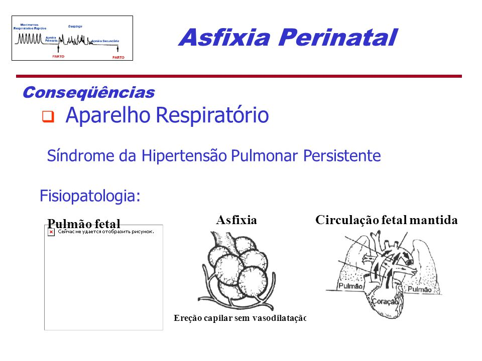 Asfixia Perinatal Síndrome da Hipertensão Pulmonar Persistente Fisiopatologia: Conseqüências  Aparelho Respiratório Pulmão fetal Asfixia Ereção capil