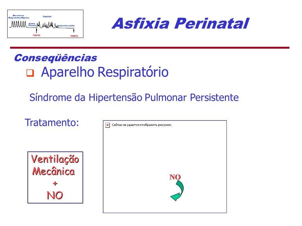 Asfixia Perinatal Síndrome da Hipertensão Pulmonar Persistente Tratamento: Conseqüências  Aparelho Respiratório NO Ventilação Mecânica + NO Ventilaçã