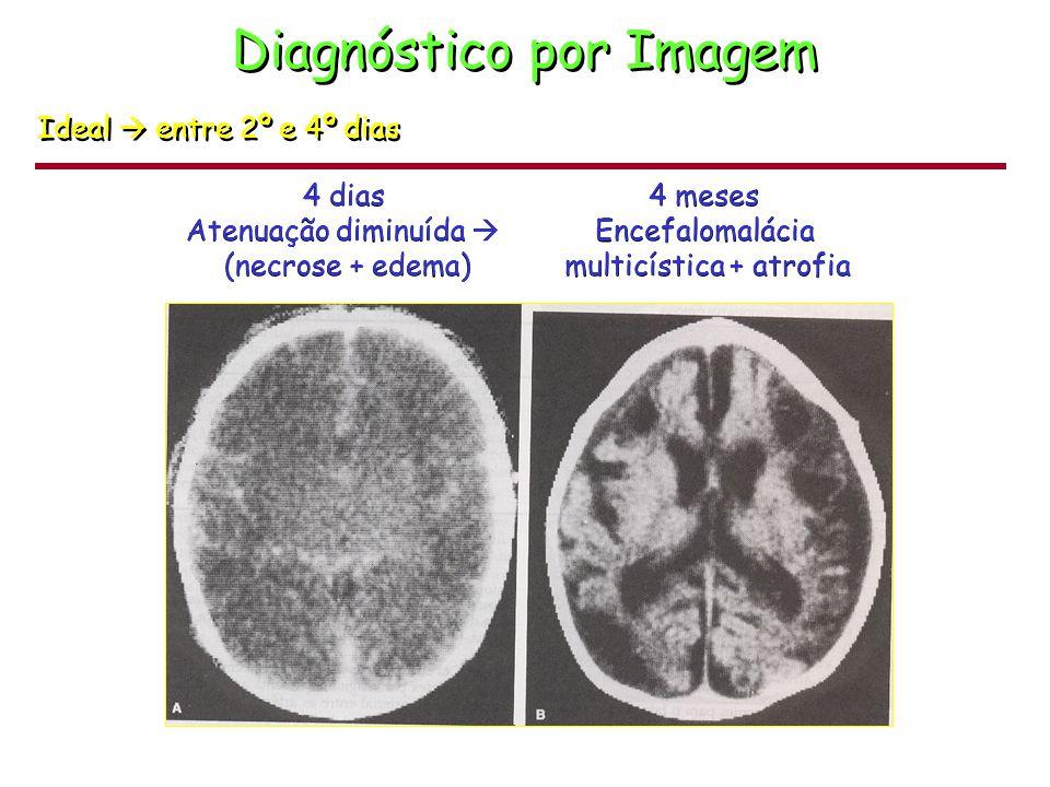 Diagnóstico Exames Eletroencefalograma Padrão descontínuo com supressão da voltagem e manifestações repentinas, rápidas, de atividade aguda e ondas lentas.