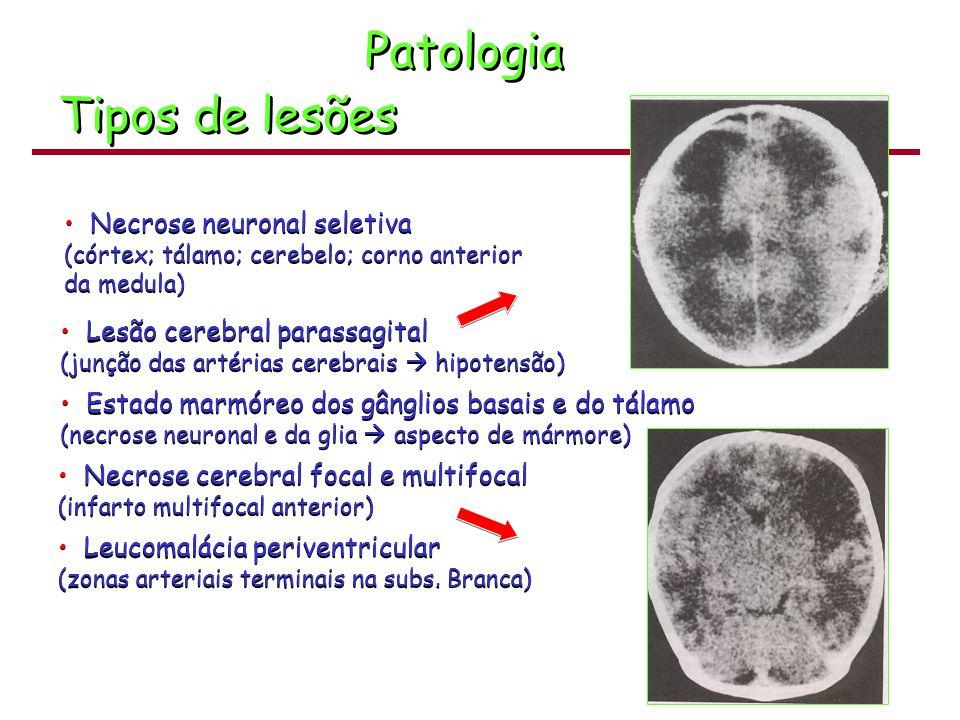 Patologia Tipos de lesões Necrose neuronal seletiva (córtex; tálamo; cerebelo; corno anterior da medula) Necrose neuronal seletiva (córtex; tálamo; ce