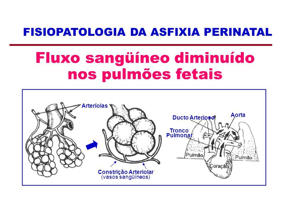 FISIOPATOLOGIA DA ASFIXIA PERINATAL Fluxo sangüíneo diminuído nos pulmões fetais Arteríolas Ducto Arterioso Tronco Pulmonar Aorta Constrição Arteriola