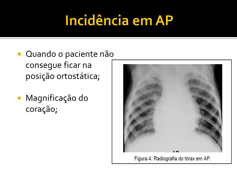  Quando o paciente não consegue ficar na posição ortostática;  Magnificação do coração;