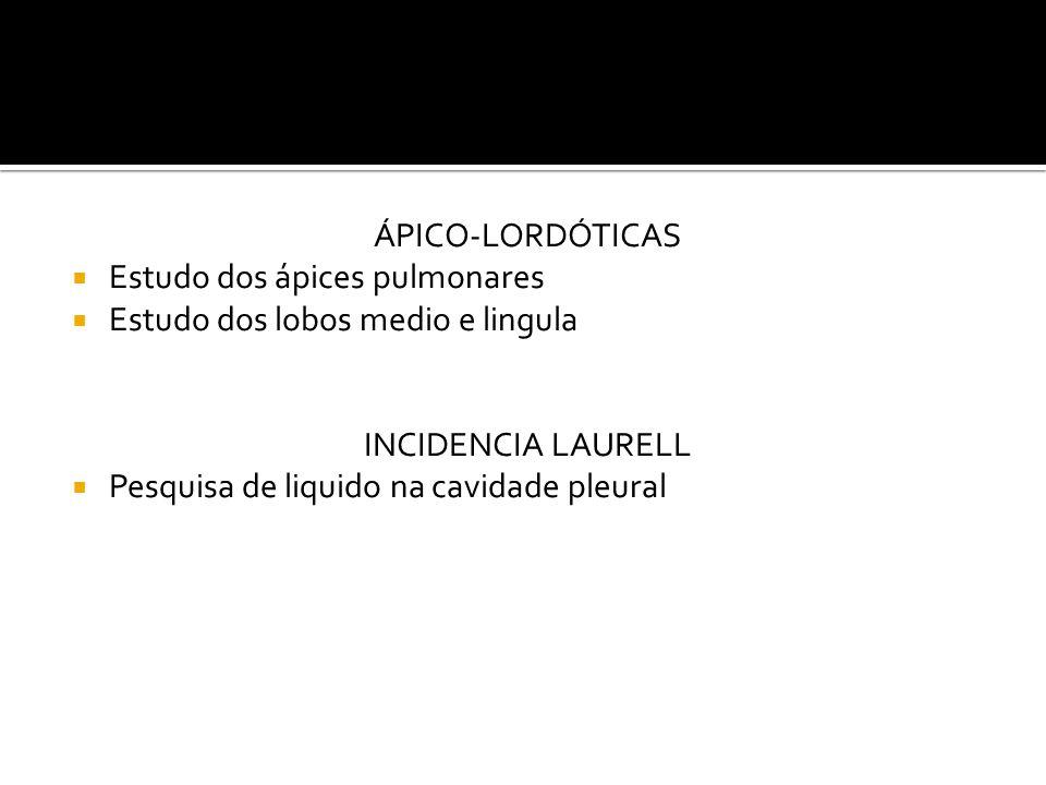 ÁPICO-LORDÓTICAS  Estudo dos ápices pulmonares  Estudo dos lobos medio e lingula INCIDENCIA LAURELL  Pesquisa de liquido na cavidade pleural