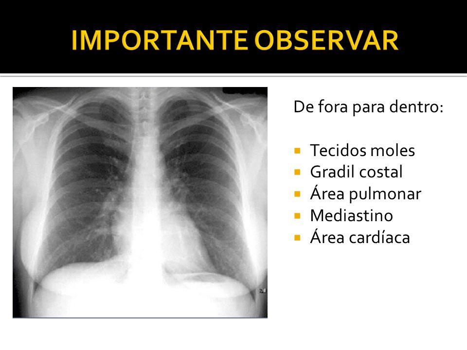 De fora para dentro:  Tecidos moles  Gradil costal  Área pulmonar  Mediastino  Área cardíaca