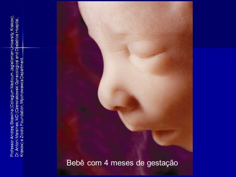 Bebê com 4 meses de gestação Professor Andrzej Skawina (Collegium Medicum Jagiellonian University, Krakow), Dr. Antoni Marsinek, MD (Czerwiakowski Gyn