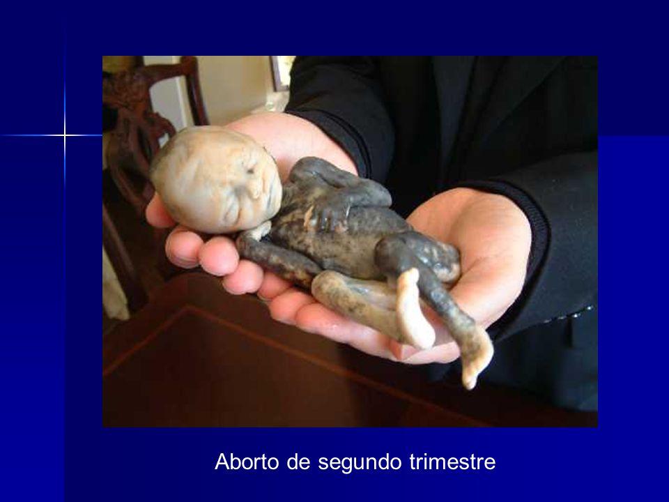 Aborto de segundo trimestre (24 semanas)