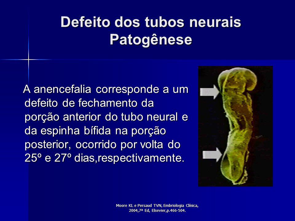 modificado de www.anencephalie.info.org/image/med_sketch. gif Esquema geral da Anencefalia NORMAL HEMISFÉRIOS CEREBRAIS TRONCO CEREBRAL ANENCEFALIA TR