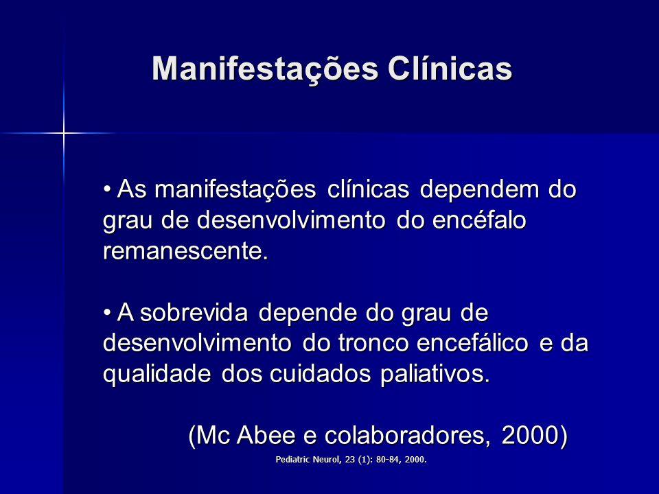 Moore KL e Persaud TVN, Embriologia Clínica, 2004,7ª Ed, Elsevier,p.466-504. Defeito dos tubos neurais Patogênese A anencefalia corresponde a um defei