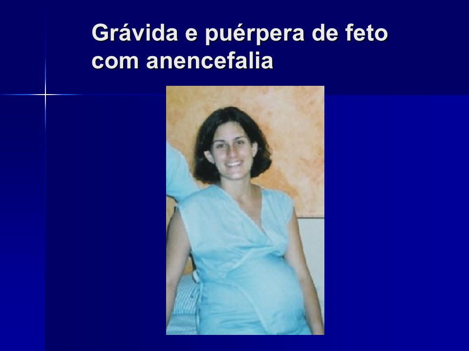 Diament A e Cypel S, Neurol Infant, 1996, 3ªed., p. 745 e Shewmon A, Hast Cent Report, 18(5): 11, 1988. Características Clínicas do Neonato com anence