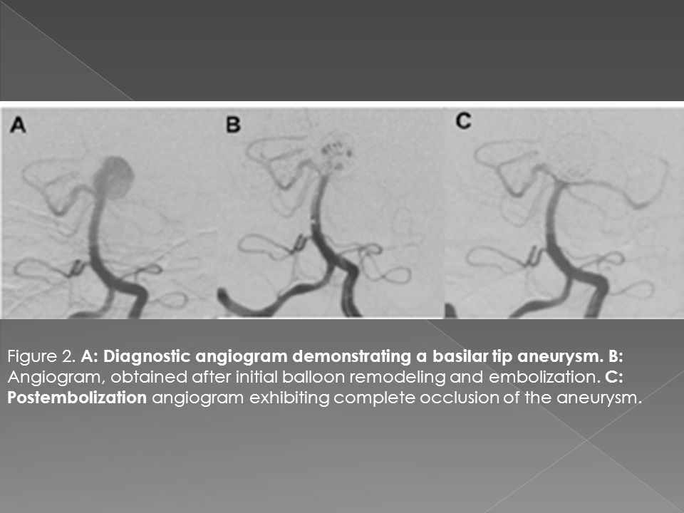 Figure 2. A: Diagnostic angiogram demonstrating a basilar tip aneurysm. B: Angiogram, obtained after initial balloon remodeling and embolization. C: P