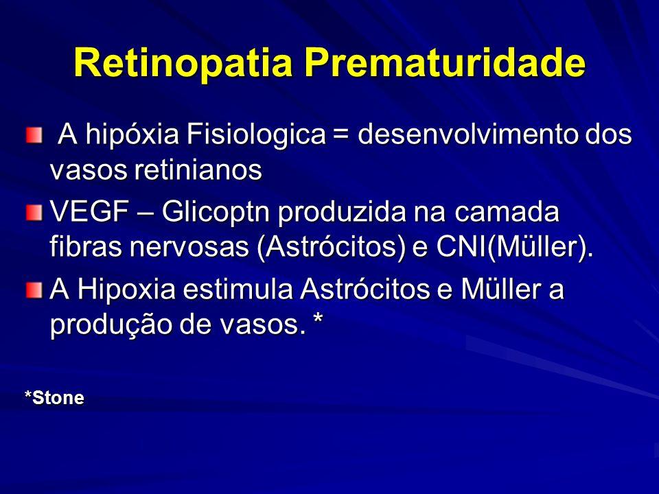 Retinopatia Prematuridade A hipóxia Fisiologica = desenvolvimento dos vasos retinianos A hipóxia Fisiologica = desenvolvimento dos vasos retinianos VEGF – Glicoptn produzida na camada fibras nervosas (Astrócitos) e CNI(Müller).