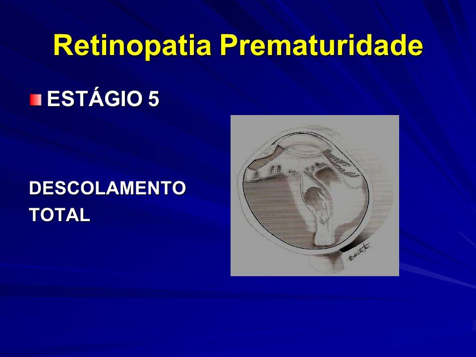 Retinopatia Prematuridade ESTÁGIO 5 DESCOLAMENTOTOTAL
