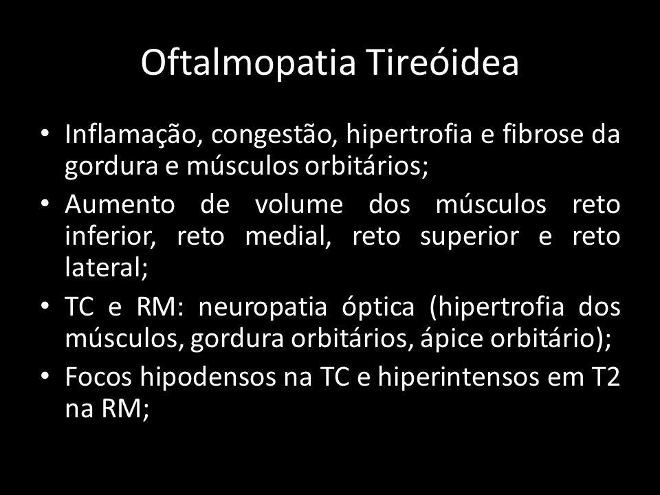 Oftalmopatia Tireóidea Inflamação, congestão, hipertrofia e fibrose da gordura e músculos orbitários; Aumento de volume dos músculos reto inferior, re