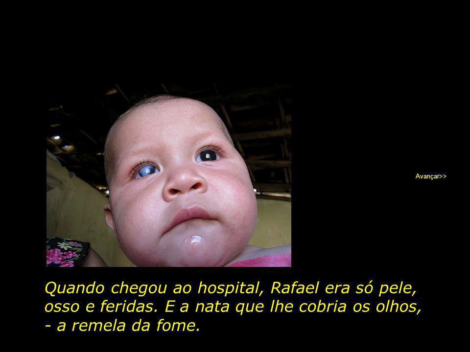 Rafael, 2 anos, morador de Ipubi, PE, perdeu a visão do olho direito devido a forte desnutrição. Avançar>>