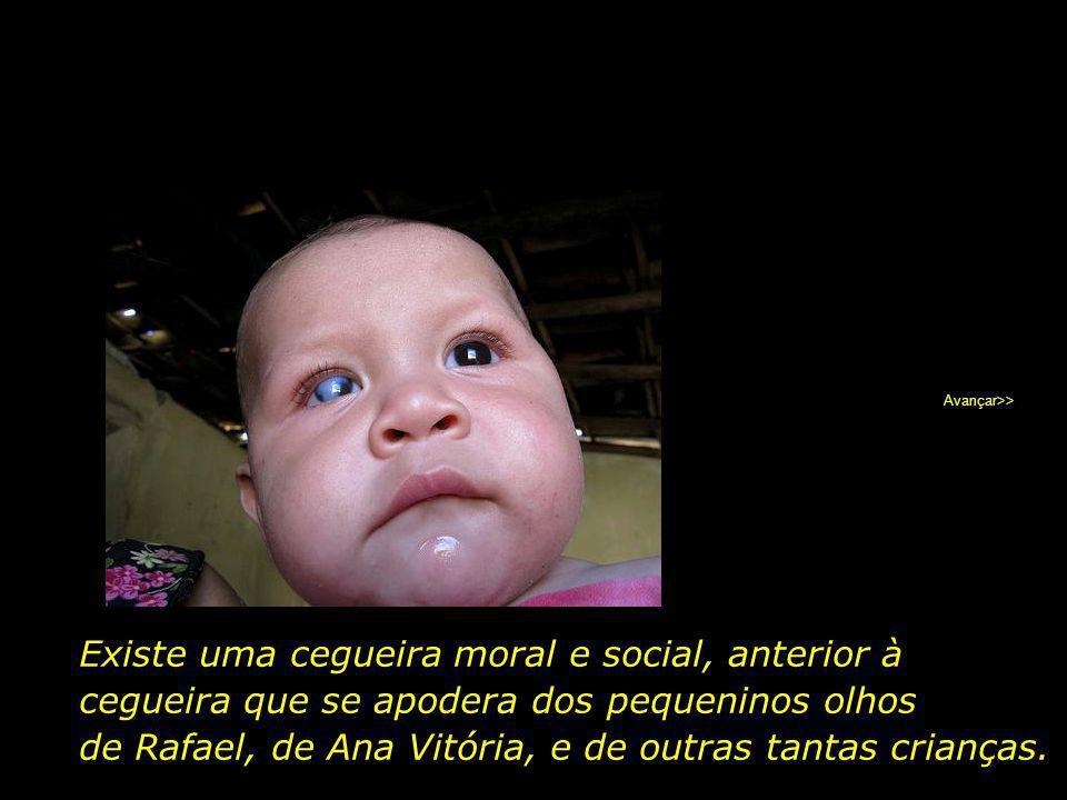 Ana Vitória, 1 ano e 2 meses, que mora num município vizinho, teve menos sorte ainda, perdendo a visão dos dois olhos devido a forte desnutrição. Avan