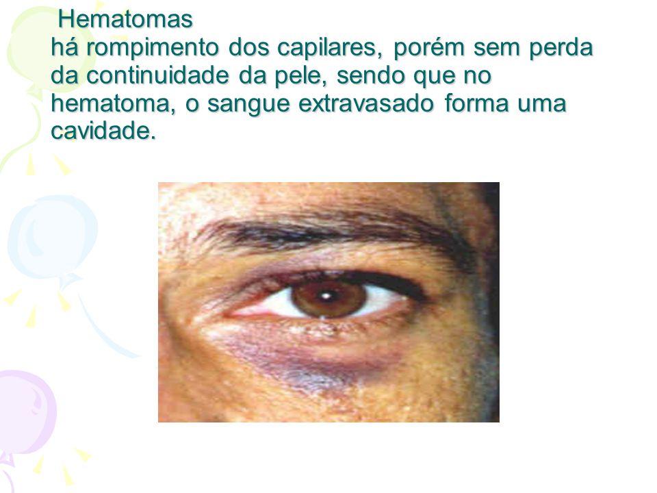 Hematomas há rompimento dos capilares, porém sem perda da continuidade da pele, sendo que no hematoma, o sangue extravasado forma uma cavidade. Hemato