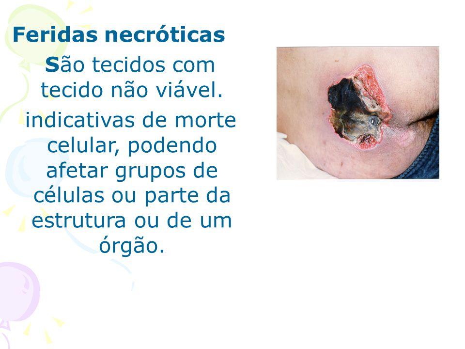 Feridas necróticas São tecidos com tecido não viável. indicativas de morte celular, podendo afetar grupos de células ou parte da estrutura ou de um ór