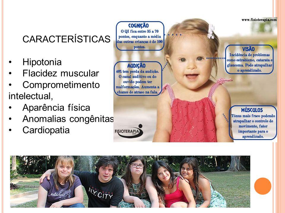 CARACTERÍSTICAS Hipotonia Flacidez muscular Comprometimento intelectual, Aparência física Anomalias congênitas Cardiopatia