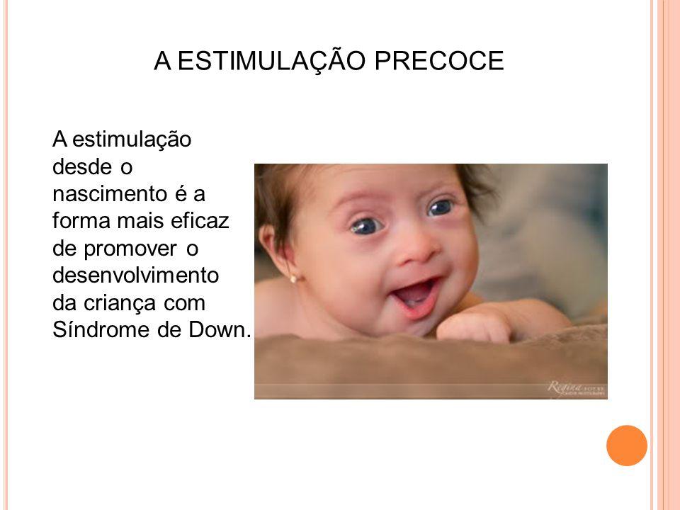 A estimulação desde o nascimento é a forma mais eficaz de promover o desenvolvimento da criança com Síndrome de Down. A ESTIMULAÇÃO PRECOCE