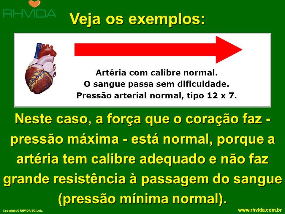 Copyright © RHVIDA S/C Ltda. www.rhvida.com.br Artéria com calibre normal. O sangue passa sem dificuldade. Pressão arterial normal, tipo 12 x 7. Veja
