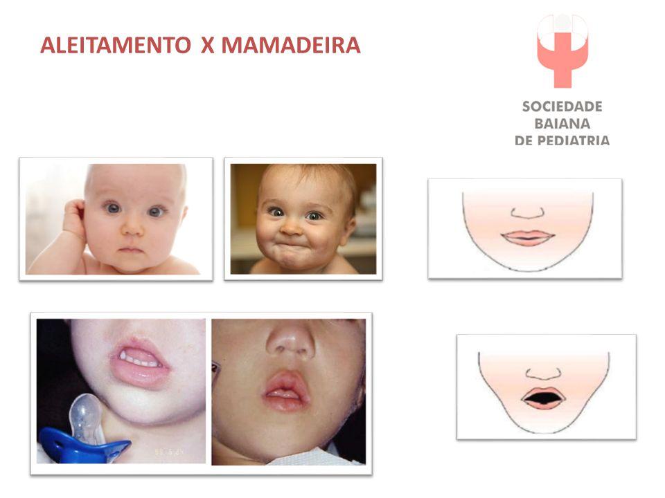ALEITAMENTO X MAMADEIRA