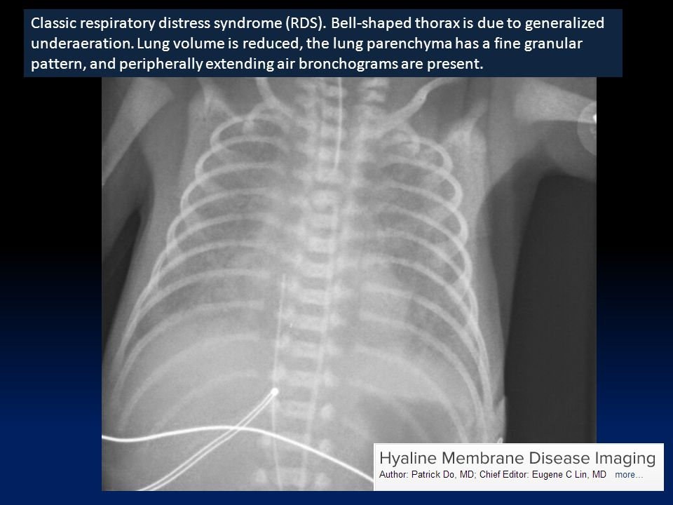 Classic respiratory distress syndrome (RDS). Bell-shaped thorax is due to generalized underaeration. Lung volume is reduced, the lung parenchyma has a