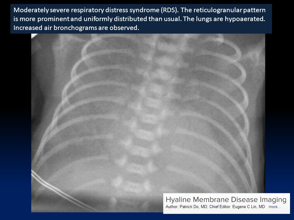 Moderately severe respiratory distress syndrome (RDS).